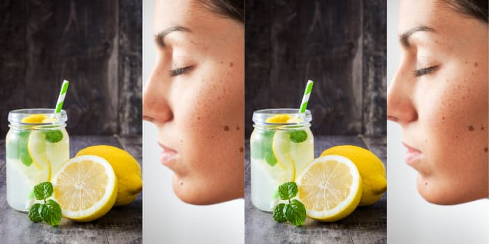 limon suyu ile benlerden kurtulma